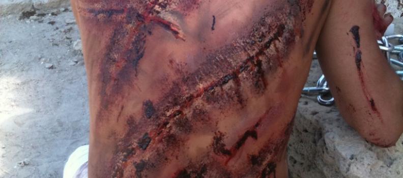 פציעות וחתכים – מתוך סט צילומים לסרט